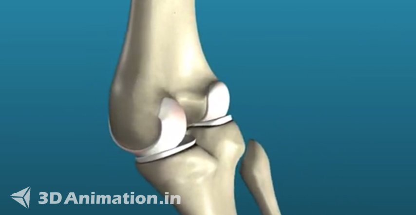 3D Modeling & Texture of Medical Animation videos