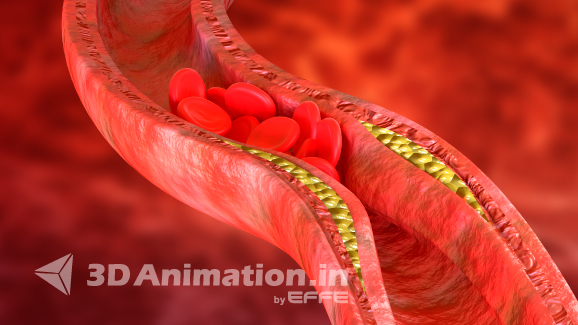 3D Science Medical Animation